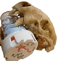 Skull With Pill Bottle by osvenator