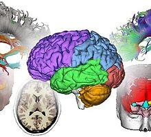 TJs Biomedical Imaging - Trial Graphics by TJsBiomedical