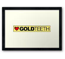 Love Gold Teeth Framed Print