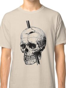 The Skull of Phineas Gage Vintage Illustration Vector Classic T-Shirt