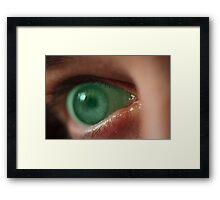 Turn off this green eyed monster! Framed Print