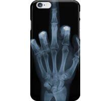 Midfing! iPhone Case/Skin