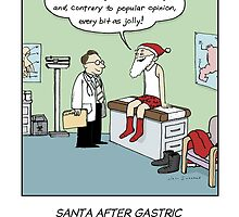Santa After Gastric Bypass Surgery by Jenn Inashvili
