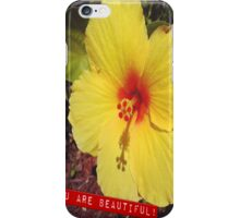 You are Beautiful iPhone Case/Skin
