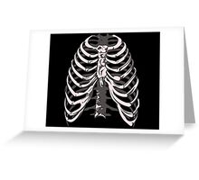 Ribs 4 Greeting Card