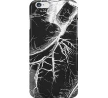 White Vintage Heart Organ iPhone Case/Skin