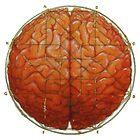 Cerebral Hyperstereogram by Kathryn Skelsey