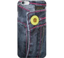Button Fly iPhone Case/Skin