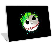 WHY SO SALLIOUS ? Laptop Skin