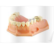 Dental model  Poster