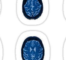 Brain flutters Sticker