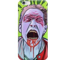 Hunk Zombie iPhone Case/Skin