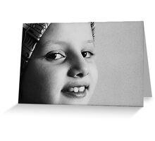 YoYo In Black & White Greeting Card