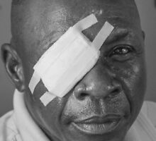 Ophthalmology patient by HandUp-Congo