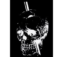 The Skull of Phineas Gage (White) Photographic Print