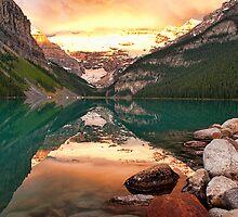 Lake Louise by Beth Mason