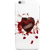 It will heal iPhone Case/Skin