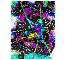 """""""Alzheimers Neuron""""© Poster"""