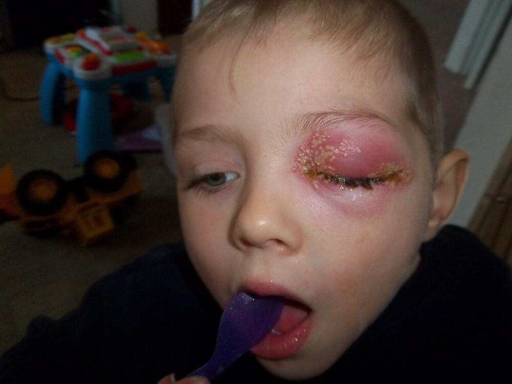 Eye disease by centralurgenetm