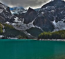 Moraine Lake by Rhea Hogberg