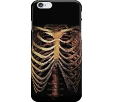 RIB CAGE TEE iPhone Case/Skin