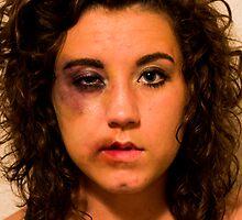 Beaten Beauty by George Tibbles