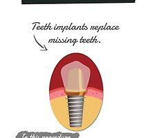 Dental Implants - Your Solution to Missing Teeth by All Star Dental Office
