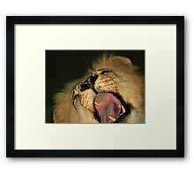 Say ah for the doctor !! Framed Print