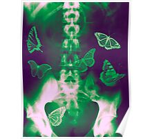Butterflies in the stomach - x-ray  Poster