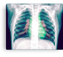 Chest x-ray of a 3 year old female baby Canvas Print