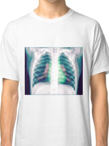 Chest x-ray of a 3 year old female baby Classic T-Shirt