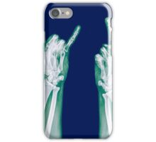 x-ray of a human hand making obscene hand gestures  iPhone Case/Skin