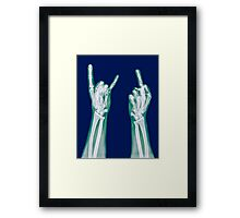 x-ray of a human hand making obscene hand gestures  Framed Print
