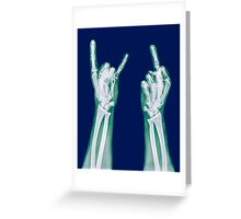 x-ray of a human hand making obscene hand gestures  Greeting Card