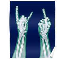 x-ray of a human hand making obscene hand gestures  Poster