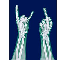 x-ray of a human hand making obscene hand gestures  Photographic Print
