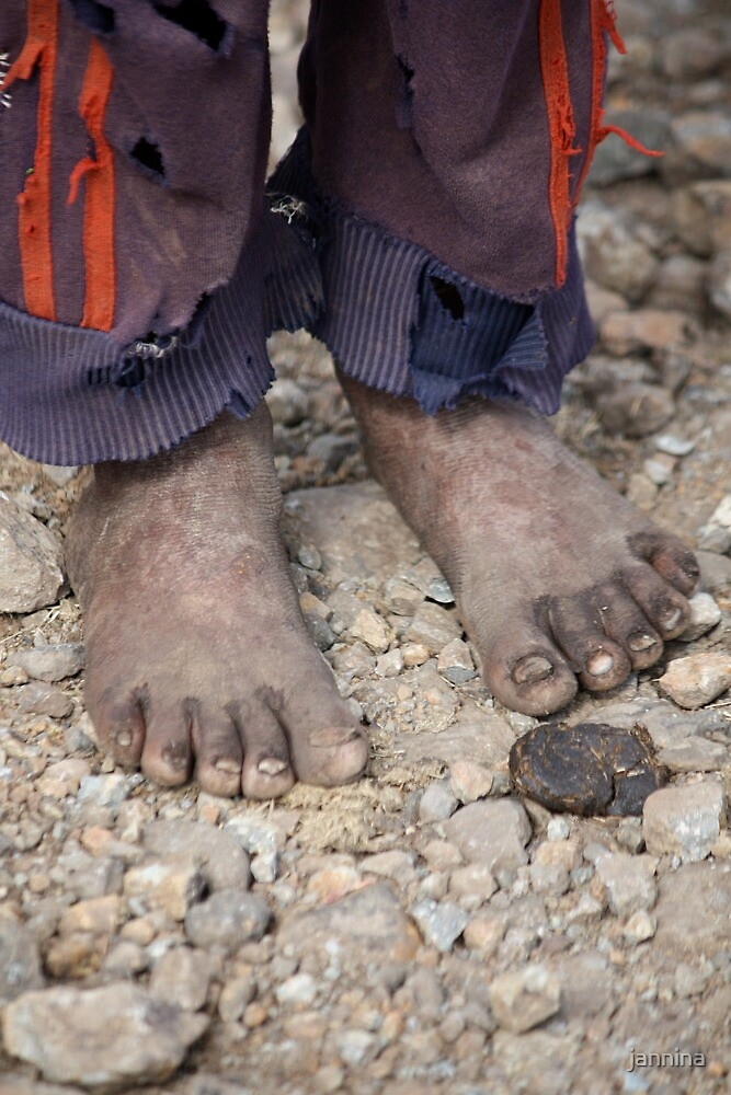 These Feet were made for Walking. by jannina
