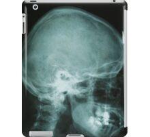 x-ray skull of human iPad Case/Skin