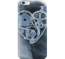 BiKE LOVE X Ray bicycle heart components iPhone Case/Skin