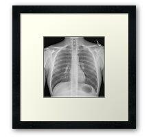 Chest x-ray Framed Print