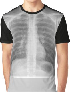 Chest x-ray Graphic T-Shirt
