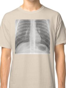 Chest x-ray Classic T-Shirt