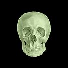Albinus Skull 03 - Zombie Attack - Black Background by sivieriart