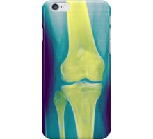 Knee x-ray front view iPhone Case/Skin
