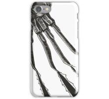 Freddy - Nightmare on Elm Street iPhone Case/Skin