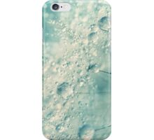 Dandy Rain iPhone Case/Skin