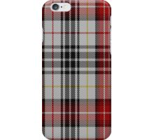 01936 Casey Dress Fashion Tartan Fabric Print Iphone Case iPhone Case/Skin