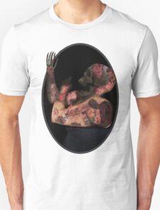 A mess of an injury Unisex T-Shirt