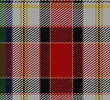 02634 Dundee Dress Fashion Tartan Fabric Print Iphone Case by Detnecs2013