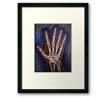 Hand X-Ray Framed Print